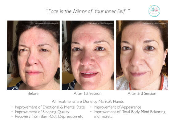 Facial Reflexology, Reflex Therapy, Emotional Balancing